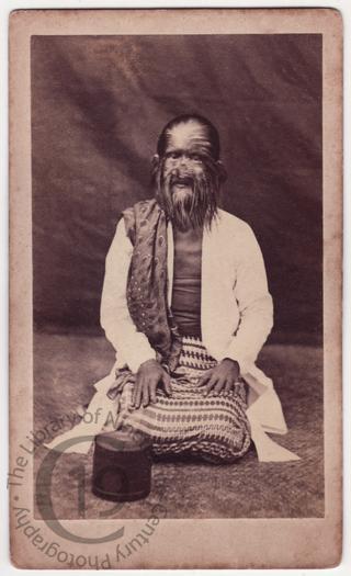 The Hairy Family of Burma