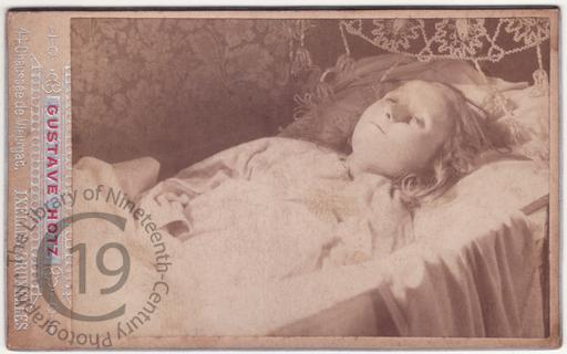 A dead girl with open eyes